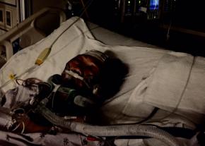 An un-tolerable injury to an Elysian Valley Senior on the Pedestrian/BikePath
